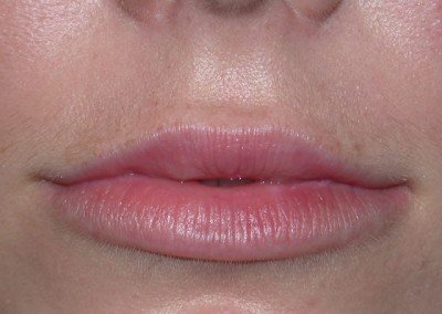 LipsAfter*