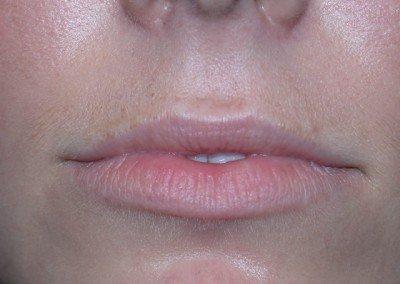 LipsBefore*