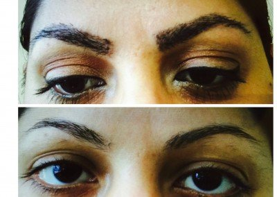 before and after eye treatment*