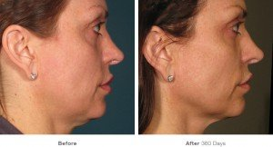 Ultherapy3