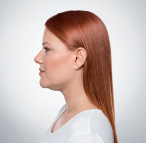 Kybella Fort Lee | Fort Lee Cosmetic Surgery | Laser Center